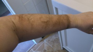 dirty arm